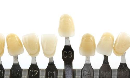 Kleur verschil van tanden